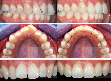 Tandlægerne på frederiksberg tandblegning