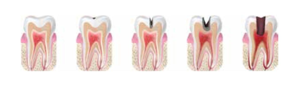 Fyldninger og huller i tænderne